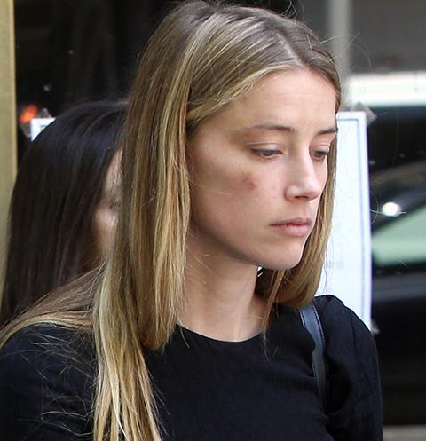 Эмбер Херд призналась, что Джонни Депп неоднократно избивал ее