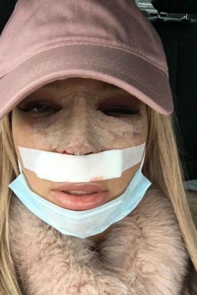 Катя носит кепку, чтобы скрыть отеки на лице