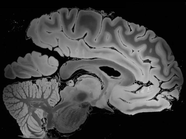Получен снимок мозга самого высокого разрешения с помощью МРТ аппарата 7 Tesla
