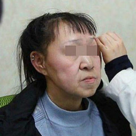 Девочке с лицом «бабушки» сделали пластическую операцию