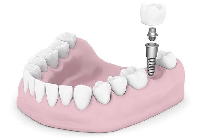 Протезирование зубов – это процесс восстановления утраченных зубов