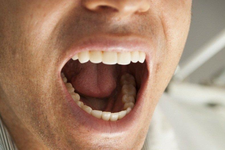 Учёные утверждают, что создали леденец, способный восстанавливать зубную эмаль
