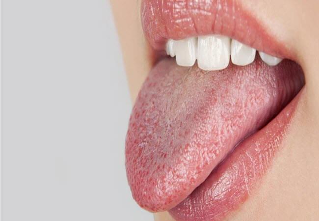 Белый налет на языке — что это значит и как от него избавиться?